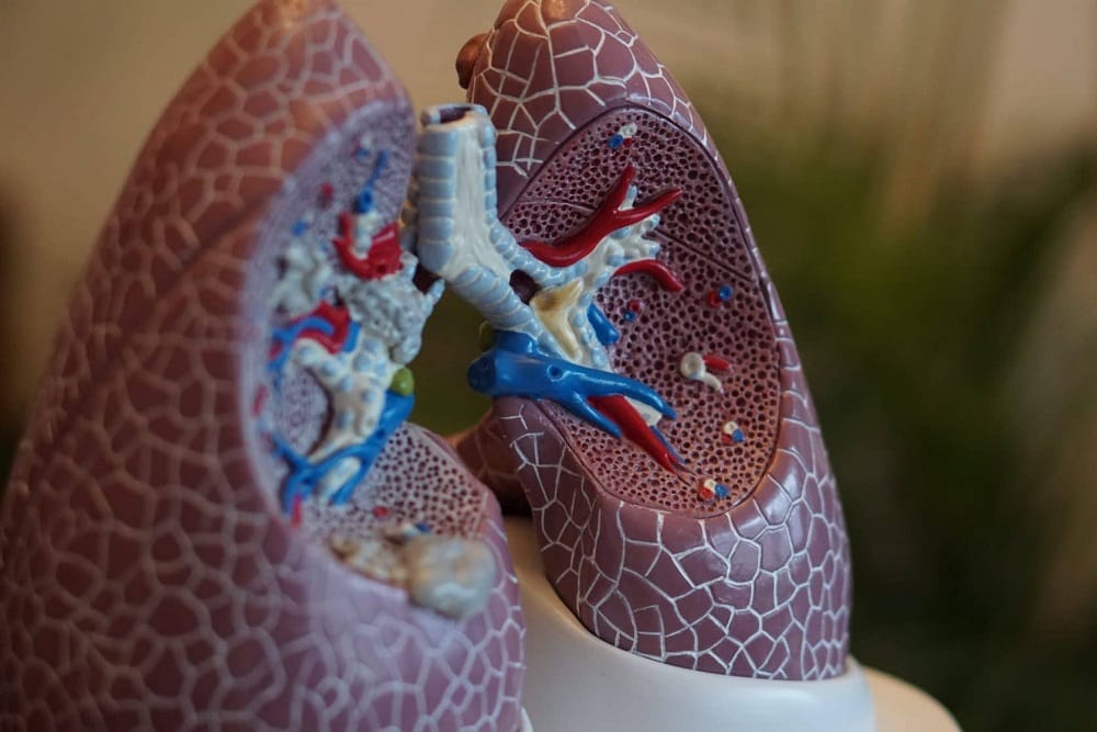 What are the Signs of a Pulmonary Embolism and How to Treat It